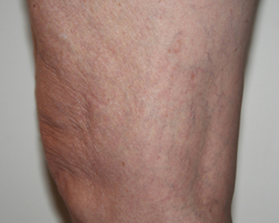 3 spider veins after