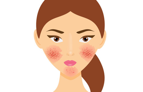 take control of rosacea