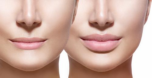 Xeomin and Botox