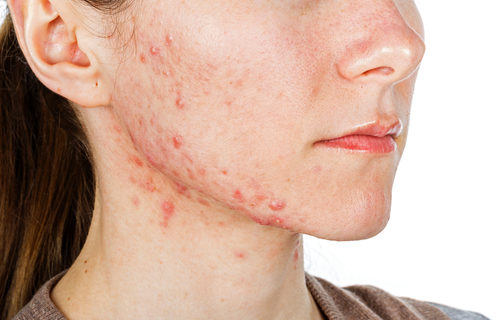 Young girl with acne