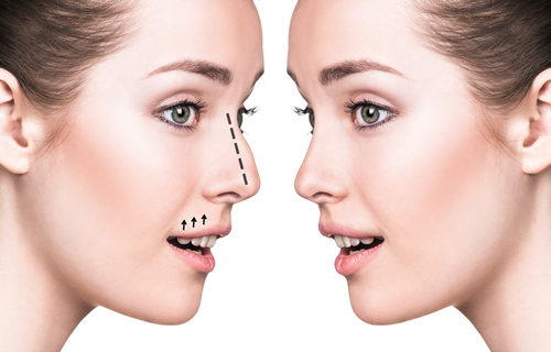 Nose Tip Refinement And Rhinoplasty