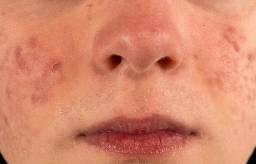 severe acne
